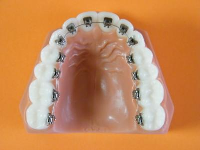 dr adjadj vernet orthodontiste marseille. Black Bedroom Furniture Sets. Home Design Ideas